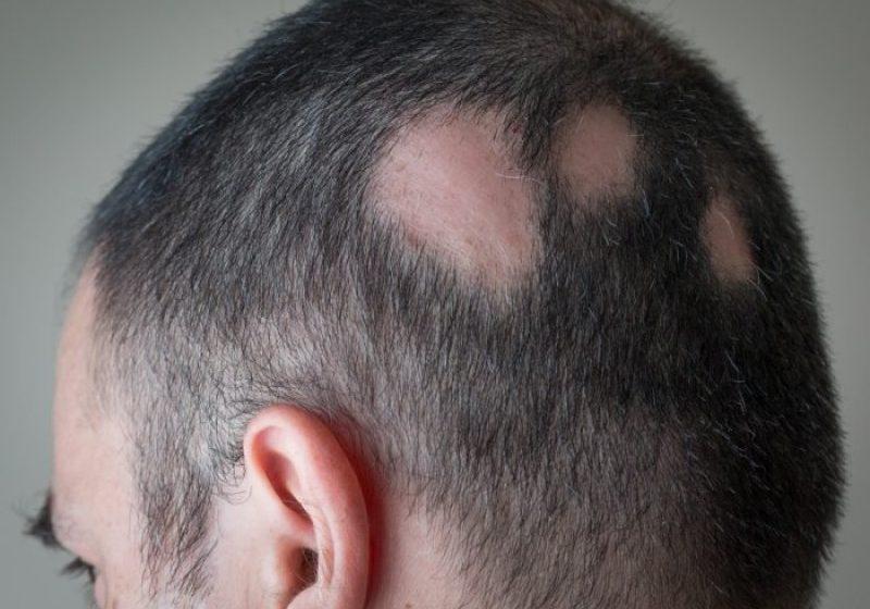 ریزش مو سکه ای ، دلایل و درمان