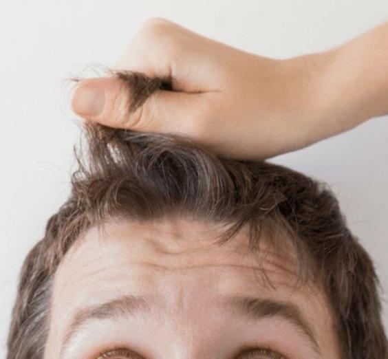 تفاوت ریزش موی آقایان و خانمها