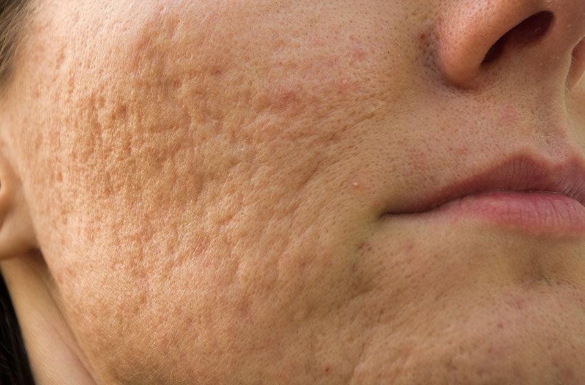 رژیم درمان جوش با محصولات اکسفولیاک نوروا