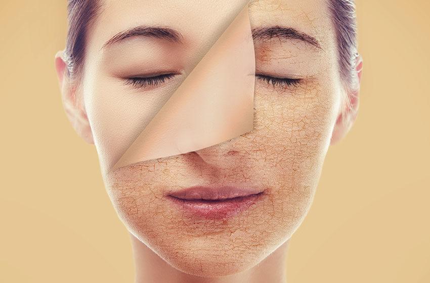 پوست دهیدراته و پوست خشک چه فرقی باهم دارند؟