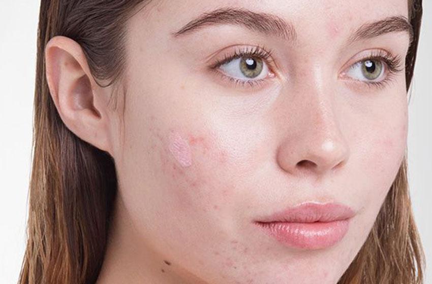 درمان آکنه یا جوش صورت با مواد ارگانیک