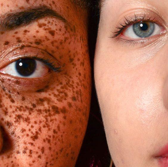 مراقبت از پوست خشک با محصولات اتودرم بایودرما