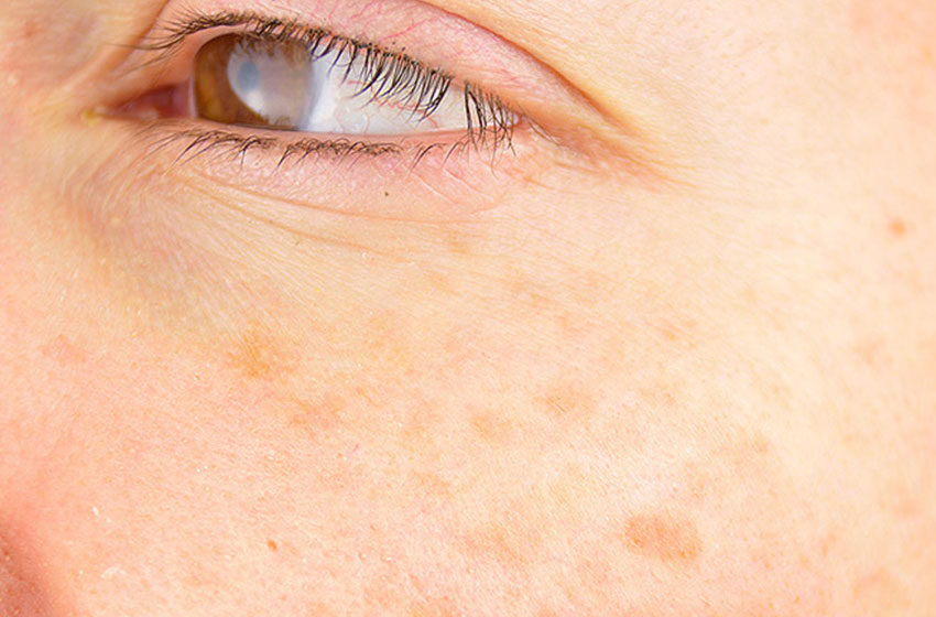 هر آنچه را که باید درباره دلایل ایجاد لک صورت و درمانهای آن بدانید