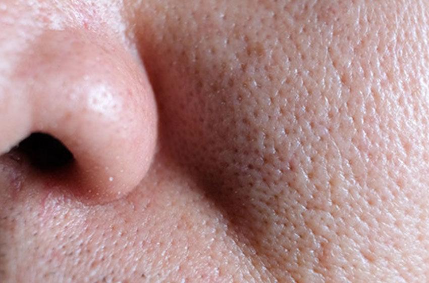 کوچک کردن منافذ باز پوست چگونه انجام می شود؟