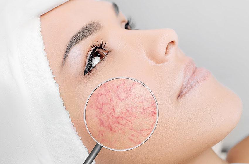 نکته های مهم برای آنهایی که پوست حساس دارند