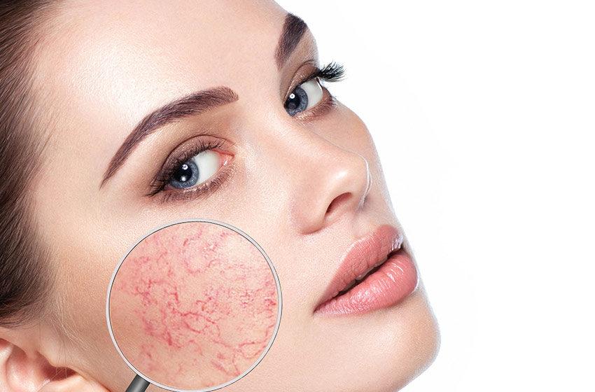همه آنچه پوست حساس ها باید بدانند