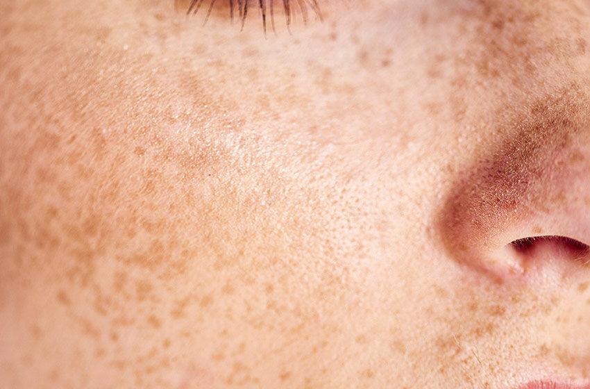 انواع لک پوستی کدامند؟
