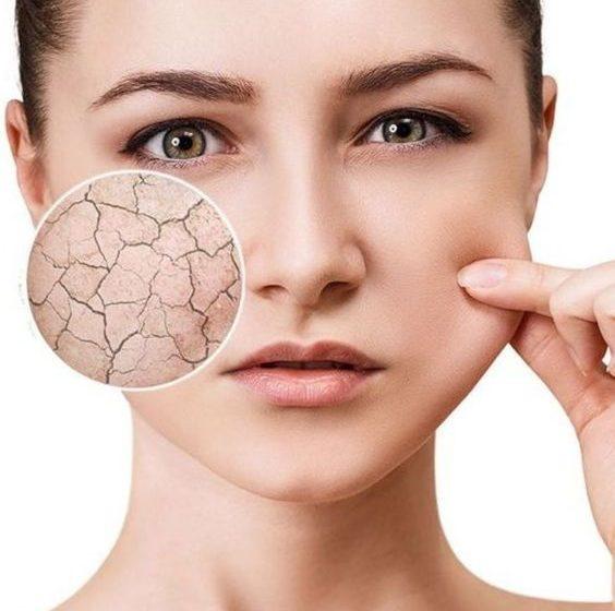 ویژگیهای پوست خشک و مراقبتهای لازم