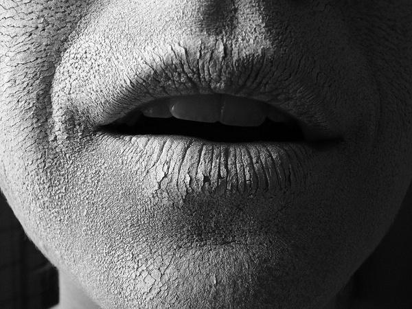 بایدها و نبایدهای پوست خشک